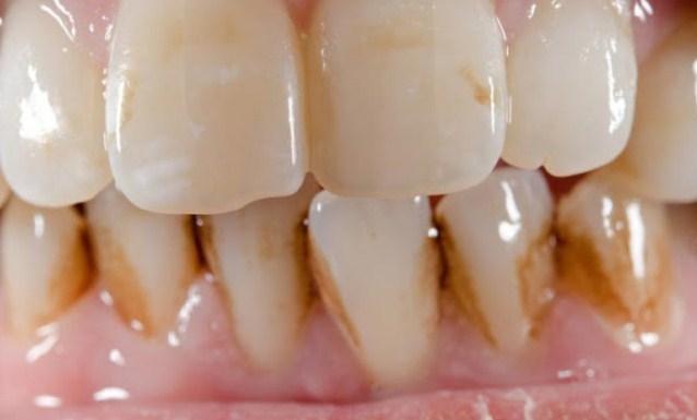 Inilah Cara Mudah Hilangkan Karang Gigi