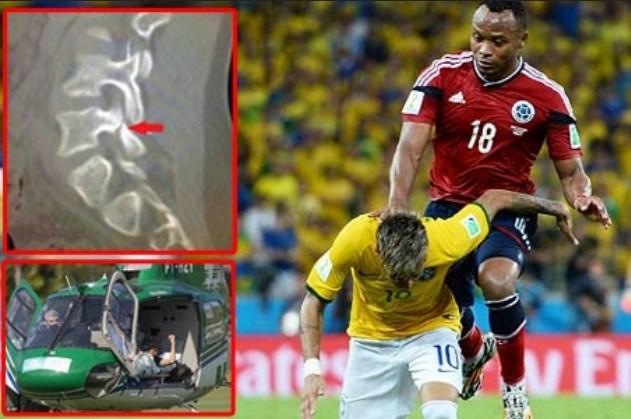 Inilah Kondisi Neymar Saat Tulang Punggung Cedera