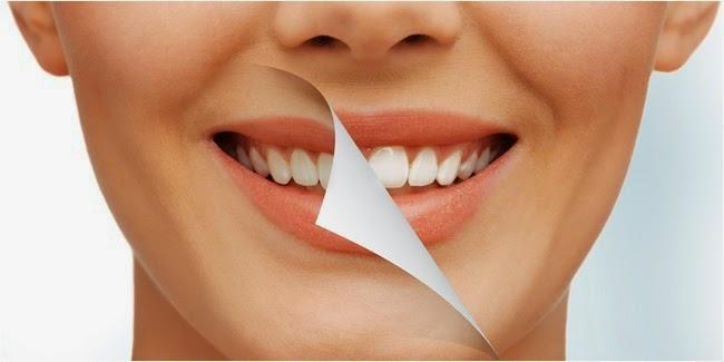 Inilah Cara Mudah Memutihkan Gigi Kuning Secara Alami