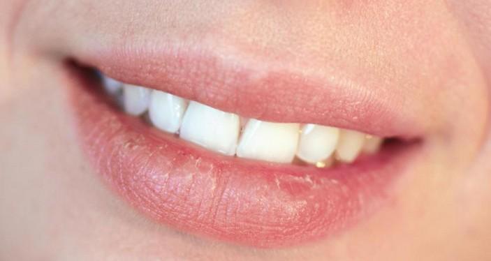 Pertanda bibir kering