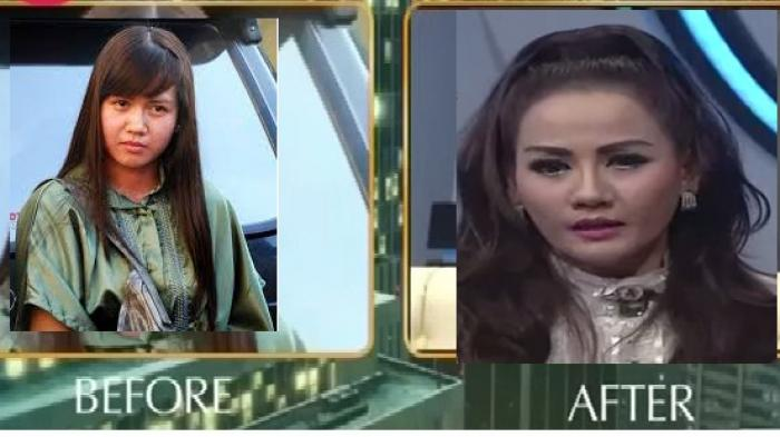 foto nita thalia before after
